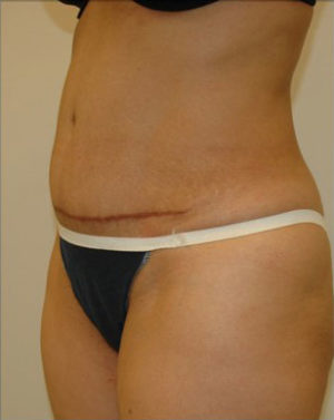 Abdominoplasty Before and After Photos