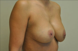 Breast Asymmetry Before and After Photos