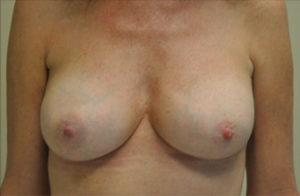 Breast Revision Before and After Photos