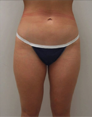 Liposuction Before and After Photos