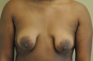 Tubular Breast Before and After Photos