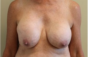 Breast Capsular Contracture Before and After Photos