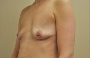 Breast Implant Removal Before and After Photos