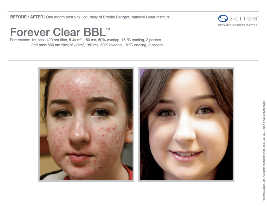 BBL Forever Clear Before and After Acne 6