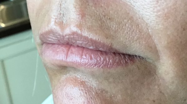 Juvederm Ultra Plus Filler for Lip Augmentation - Before Photo