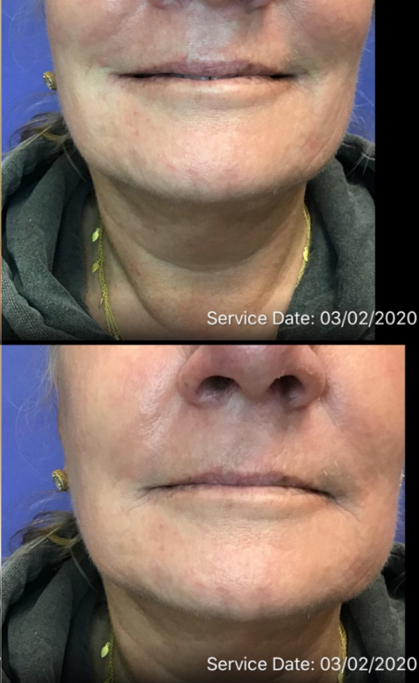 After Photos for Injectable Correction of Marionette, Chin, and Jaw