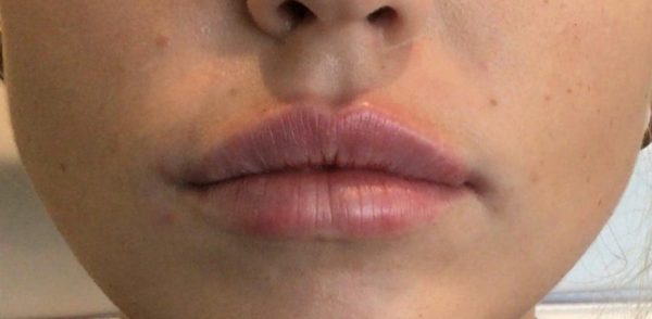 RHA Collection Lip Filler - Front View - After