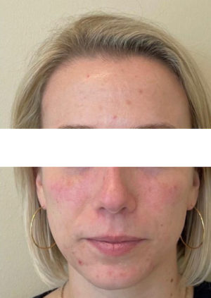 Injectable and Filler Before and After Photos